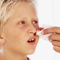 Sådan standser du næseblod